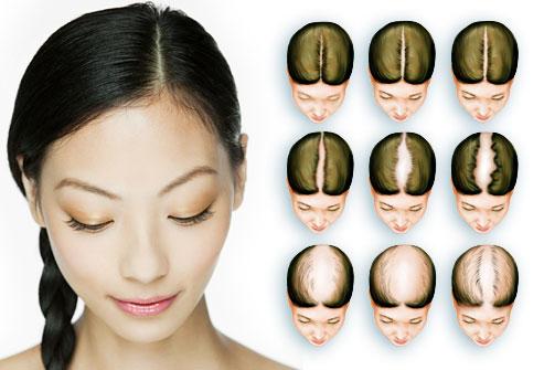 obat penebal rambut cepat dan ampuh green angelica nisim bio hair 123 nr hg keiskei rudy hadisuwarno.JPG